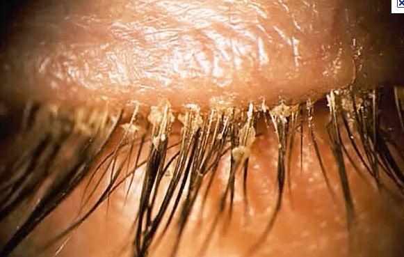 anterior_blepharitis_-_google_images-11315133094789